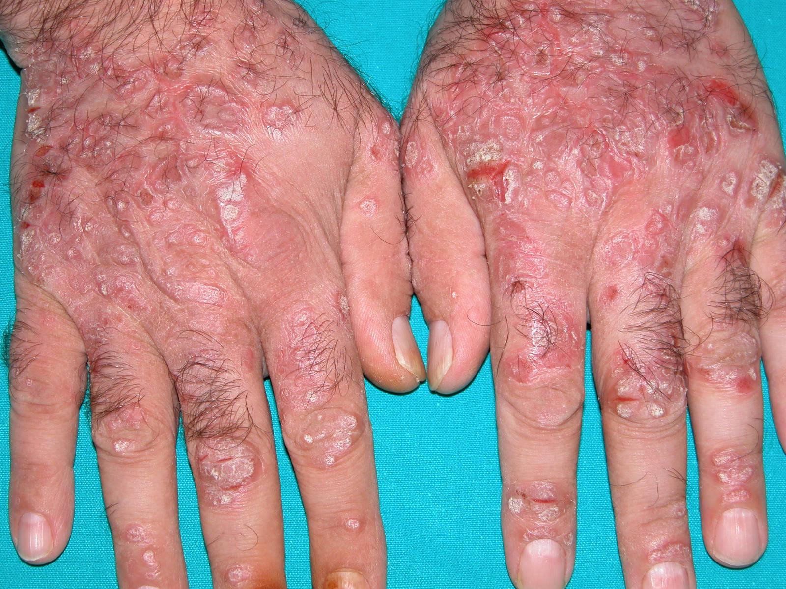 Preocupan en Argentina los nuevos casos de Hepatitis A y B y la falta de diagnóstico de Hepatitis C