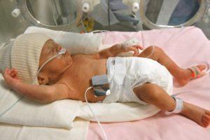 Nacen 20 bebés prematuros por día en Argentina de alto riego, con menos de 1.500 gramos